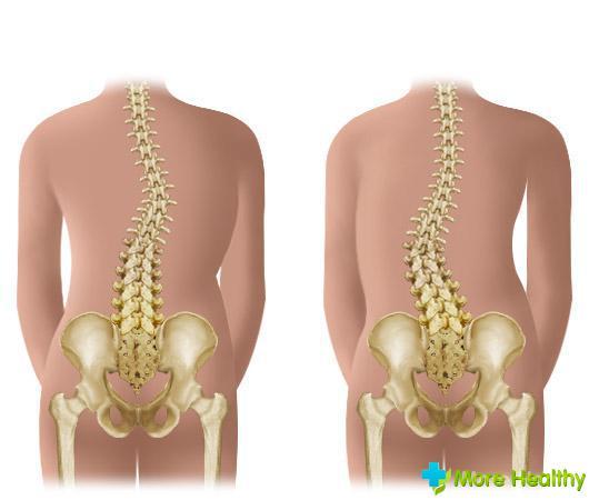 Скелетное вытяжение позвоночника при кифозе