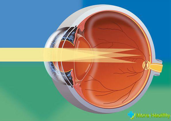 Очки для гимнастики зрения