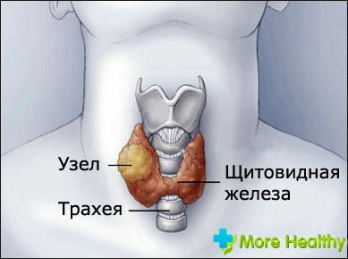 удаление узлов щитовидной железы