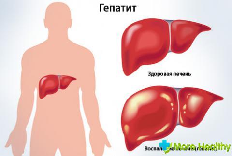 гепатит на фото