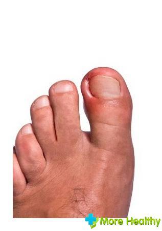 Нарыв на пальце ноги