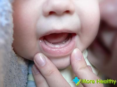 Рвота при прорезывании зубов