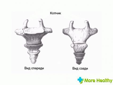 лечение ушиба копчика