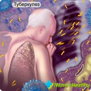 Инкубационный период туберкулеза