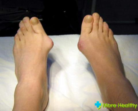 наросты на пальцах ног
