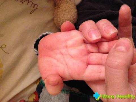 потеют руки и ноги у ребенка