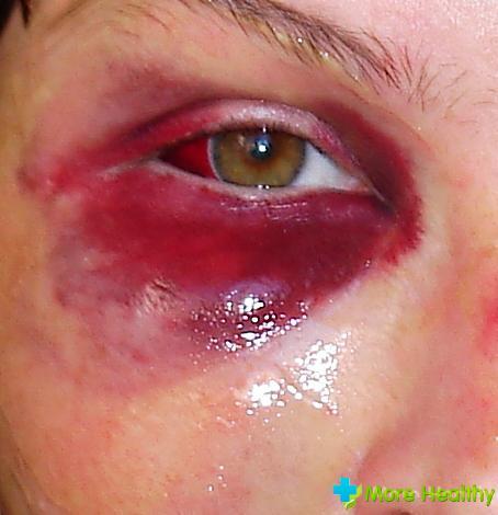гематома глаза