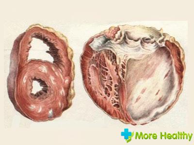 миокардический кардиосклероз