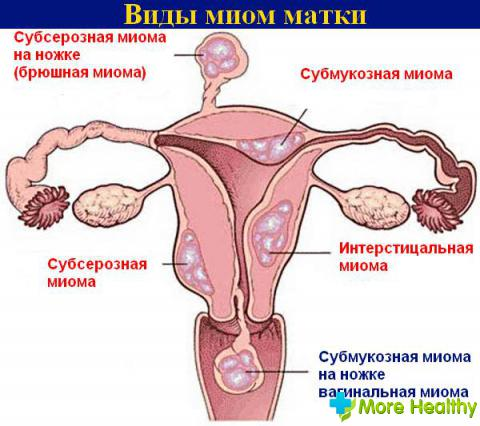 аборт при миоме матки