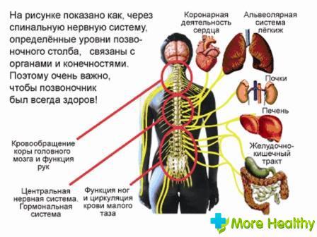 Температура при остеохондрозе