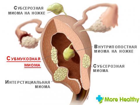 Реабилитация после удаления миомы матки