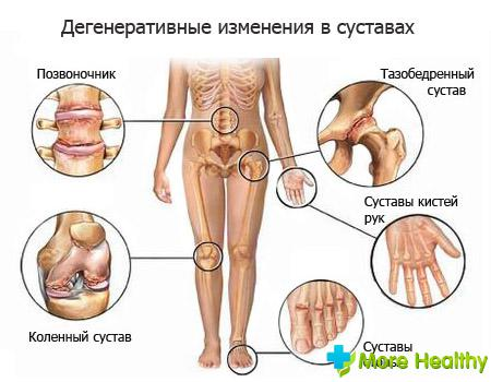 лекарство от боли в суставах
