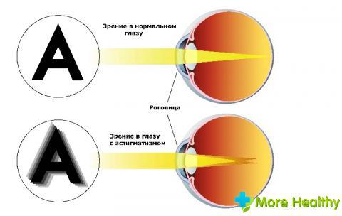 Зрение минус и зрение плюс