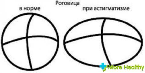 Норма роговицы