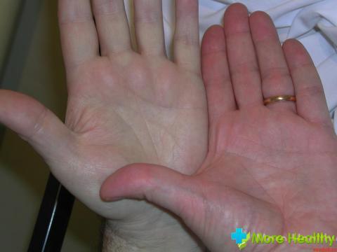 Анемия (рука)