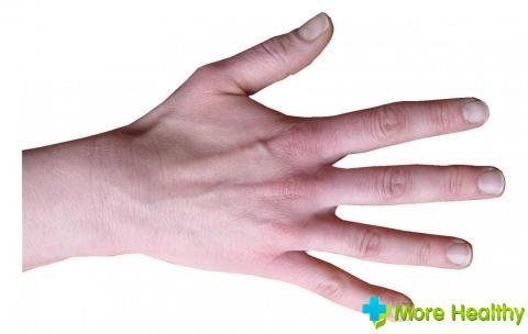 Тиосульфат укол