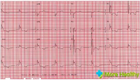 Синусовая синусоидальная аритмия сердца