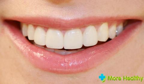 Фото 4 - Здоровые зубы