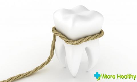 Фото 6 - Удаление зуба