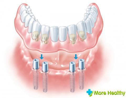 Фото 3 - Зубные протезы