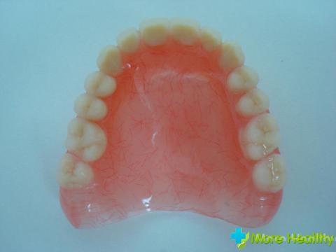 Фото 2 - Зубные протезы
