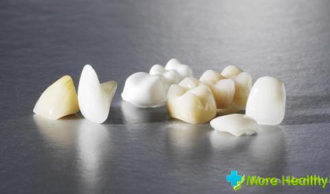 Фото 4 - Коронки на зубы
