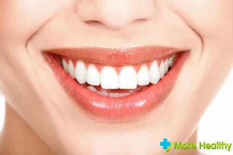 Фото 6 - Здоровые зубы
