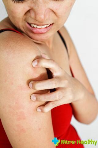 Аллергическая крапивница: причины, лечение, диета