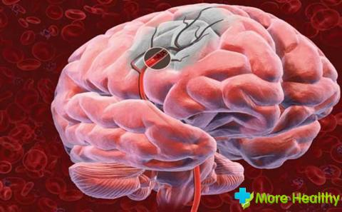 Сужение сосудов головного мозга: как лечение народными средствами?