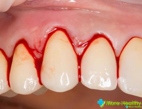 Воспаление десен – патологический процесс, который поражает мягкие ткани, окружа
