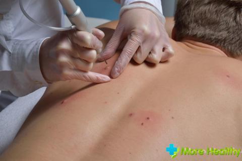 Папилломы на спине и их удаление