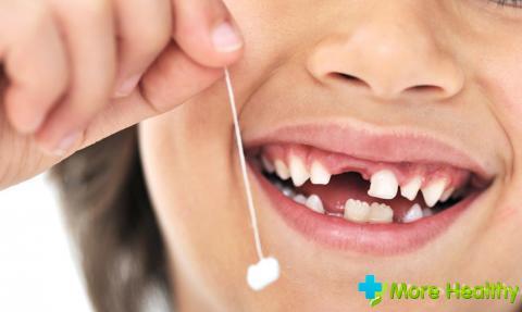 Выпадение переднего молочного зуба