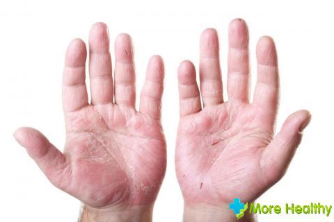 Основные признаки дерматита