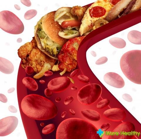 нужно снижения холестерина