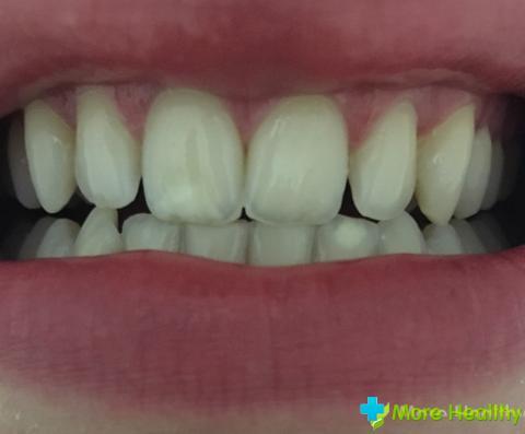 Причины белых пятен на зубах