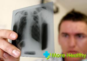 дифференциальный диагноз пневмонии