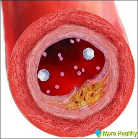 холестерин откладывается на стенках сосудов