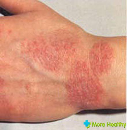 хроническая аллергия лечение