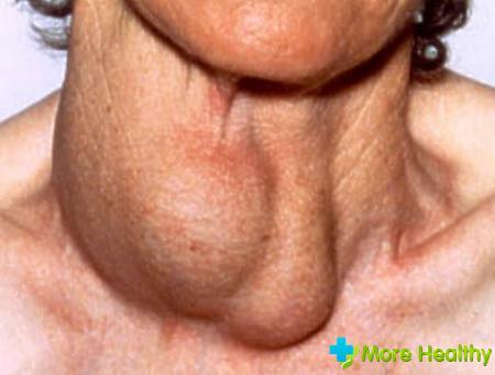 щидовидная железа