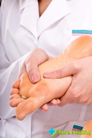лечение бородавок на ногах