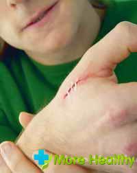 Мазь заживляющая раны – народный способ
