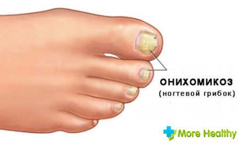 лечение онихомикоза ногтей
