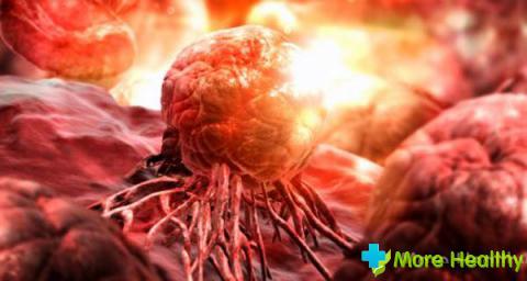 Первые признаки рака