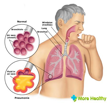 Симптомы пневмонии у взрослых настораживают