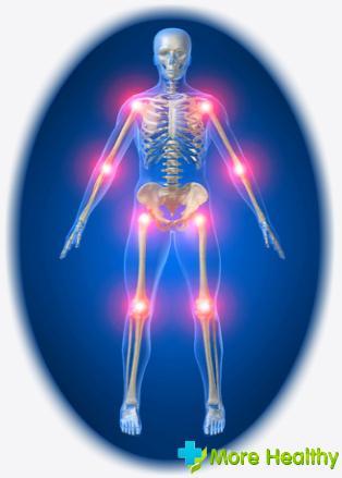 Артроз, симптомы и лечение