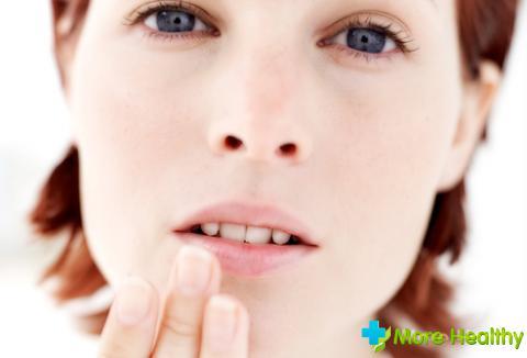 Герпетическое поражение губ