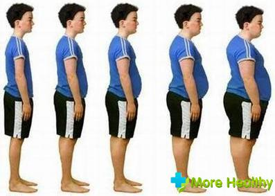 Степени ожирения