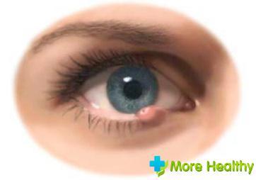 Ячмень под глазом – следствие ослабленного иммунитета